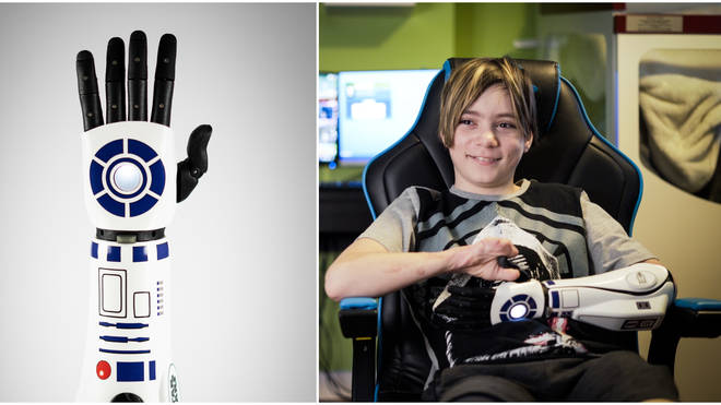 Kye Vincent became the first person to receive an R2-D2 bionic arm