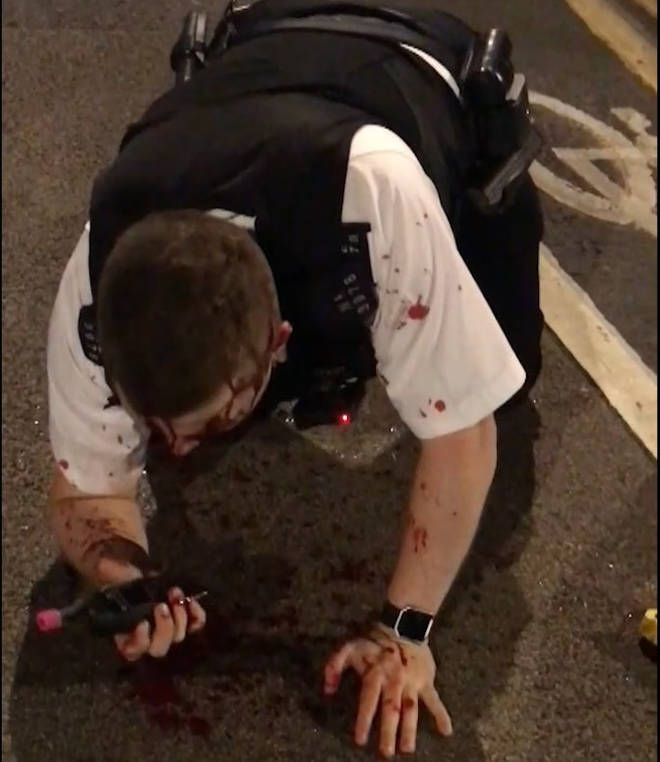 A bloodied Pc Outten on the floor after he was attacked