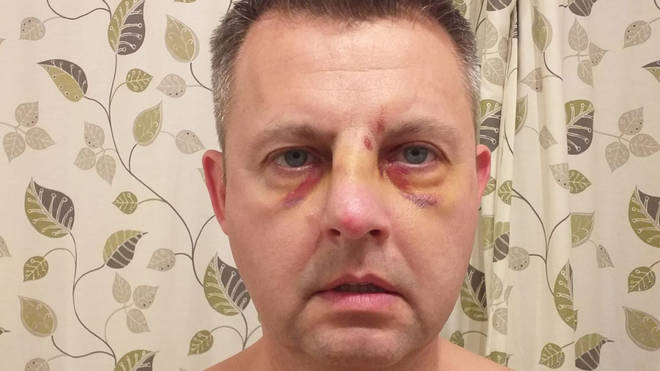 Pc Darren Jenkins, 47, was left with a broken nose after he was attacked
