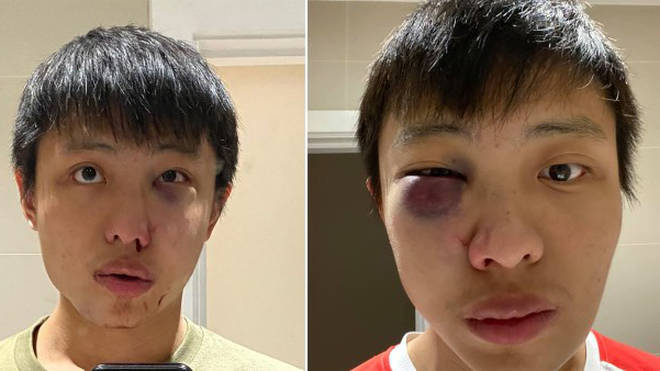 Jonathan Mok was attacked in central London