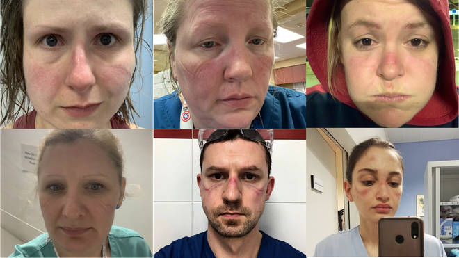 Healthcare workers have been sharing selfies showing indents and sores created by protective gear after long working hours