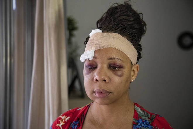 LaToya Ratlieff suffered a cracked skull after a rubber bullet hit her head in Fort Lauderdale while she was protesting peacefully