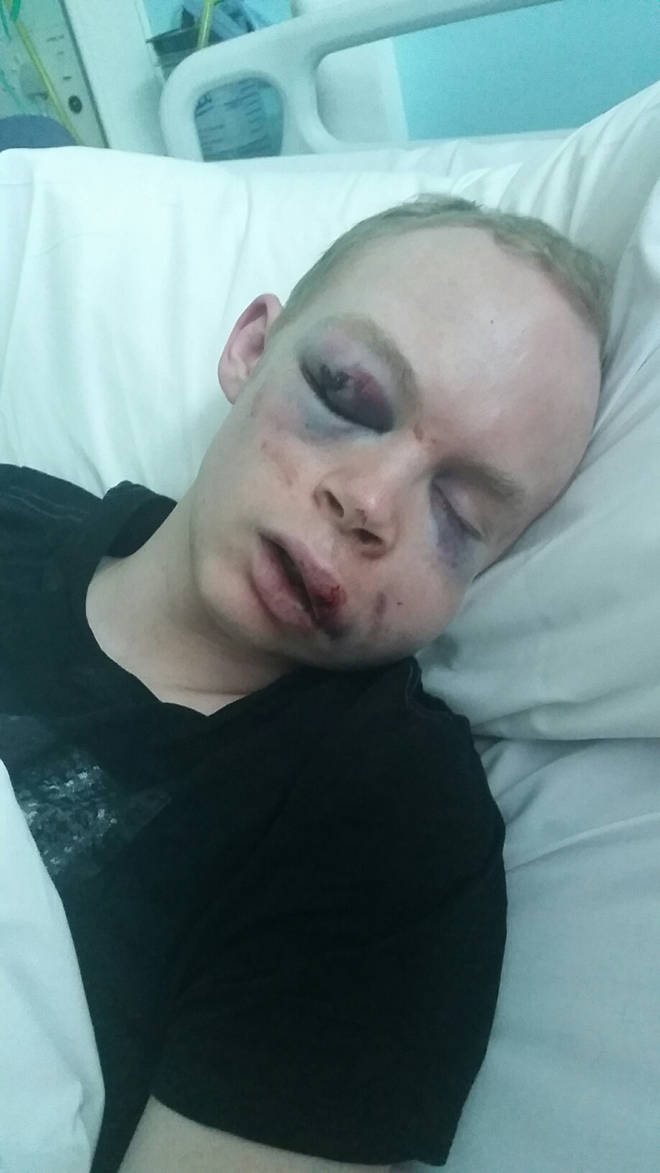 The injuries suffered by Callum Wade in the unprovoked attack