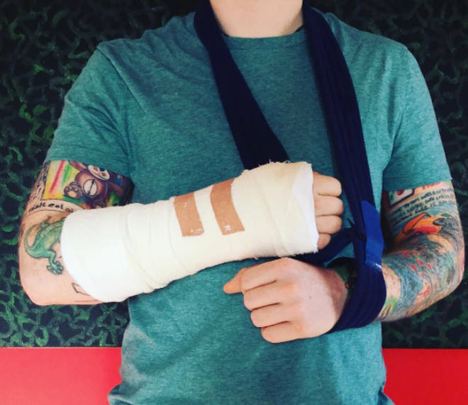 Ed Sheeran posted a picture of his cast on Instagram