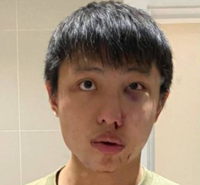 Jonathan Mok posted images of his injuries to Facebook