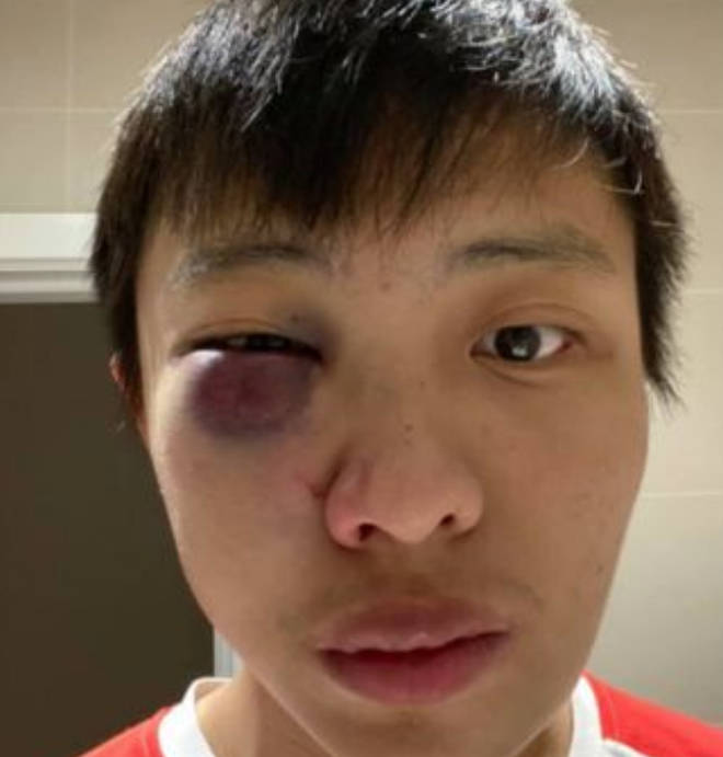 Jonathan Mok needed surgery after the attack