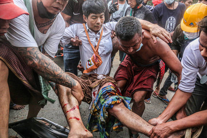 Many protesters have been injured during protests against the military regime