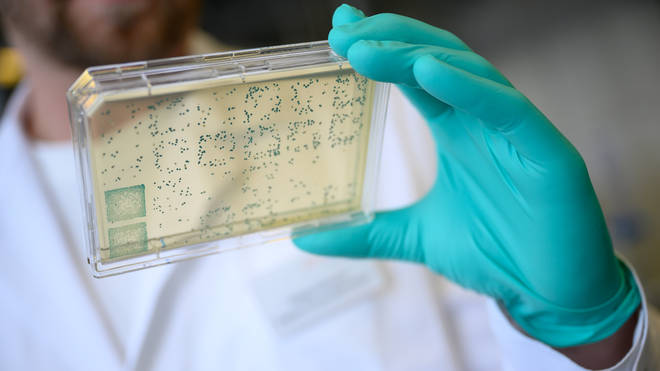Cases of a Brazil Covid-19 'variant of concern' have been detected in the UK