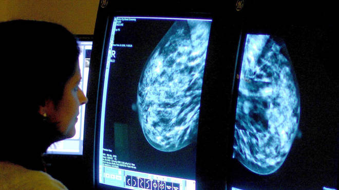 Breast Cancer Now calculated that 10,700 fewer people were diagnosed with breast cancer between March and December 2020 than it would have expected