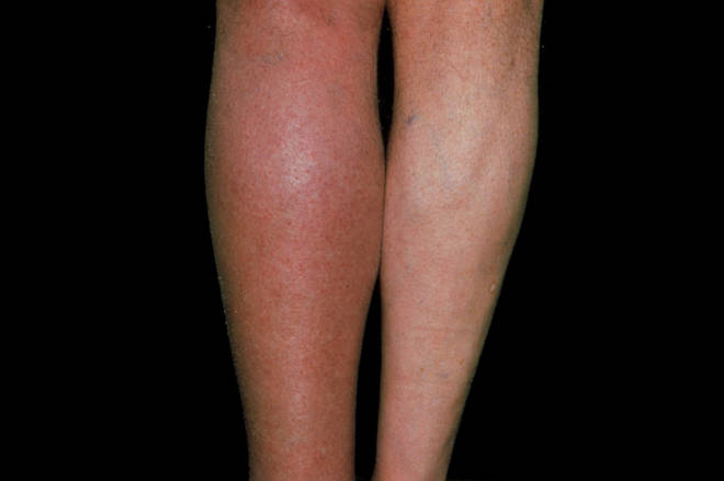 Swelling and redness caused by a clot in the left leg