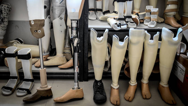 Prosthetic legs (file photo)