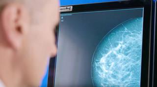 Radiologist look at mammogram screen