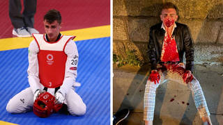 Irish Olympian awaits facial surgery following gruesome assault
