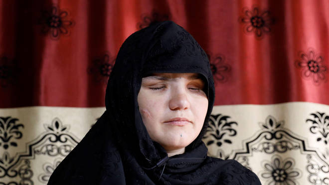 Khatera had her eyes gouged out by the Taliban in a brutal attack last year