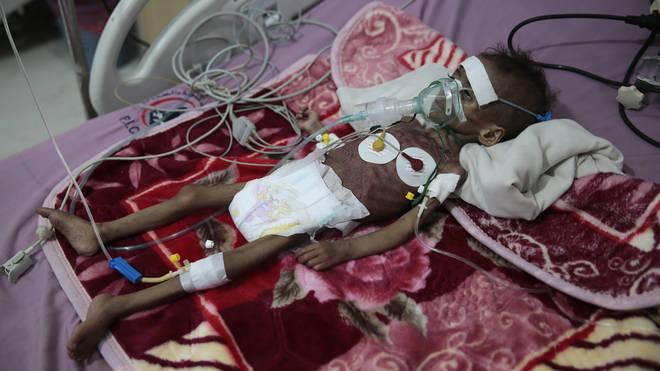 Malnourished girl Rahmah Watheeq, receives treatment at a feeding centre at Al-Sabeen hospital in Sanaa, Yemen (Hani Mohammed/AP)
