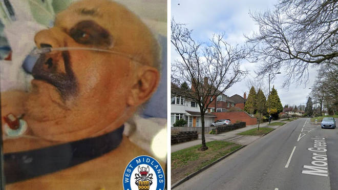 The man, 77, suffered serious injuries in the assault