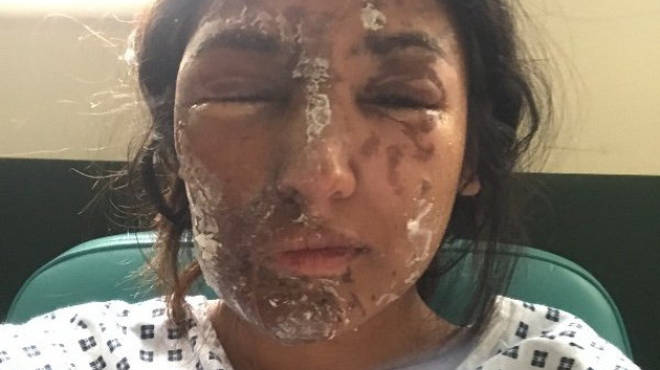 Resham Khan, following the acid attack