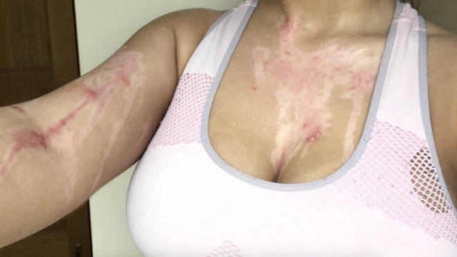 The injuries suffered by Phoebe Georgiou