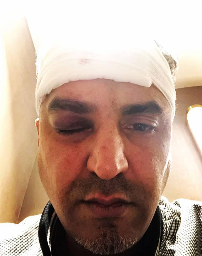Maajid Nawaz after receiving treatment following his attack
