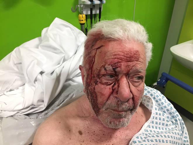 The victim suffered a broken hip