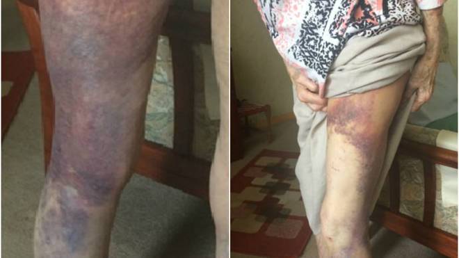 These are the horrific injuries sustained by the 92-year-old victim