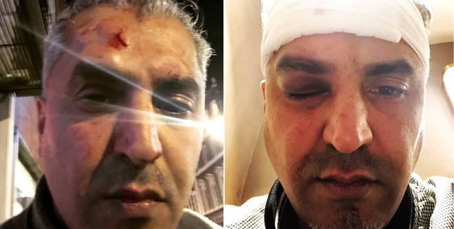 The injuries suffered by Maajid Nawaz in the attack in Soho