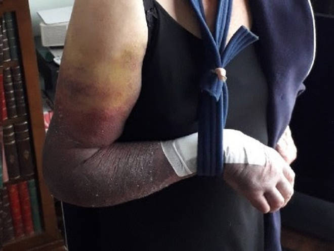 The pensioner's arm was broken during the brutal attack.
