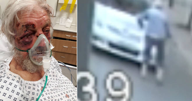 Police are appealing for help after an elderly man was knocked unconscious in an assault in Penge