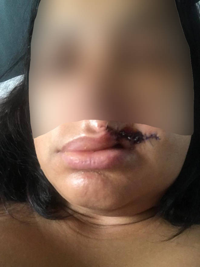 The woman suffered a serious injury to her lip