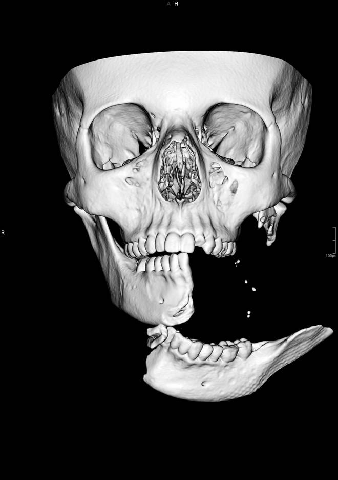 A scan of her face reveals the extent of her injuries