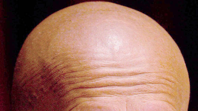 Scientists have studied the link between air pollution and baldness
