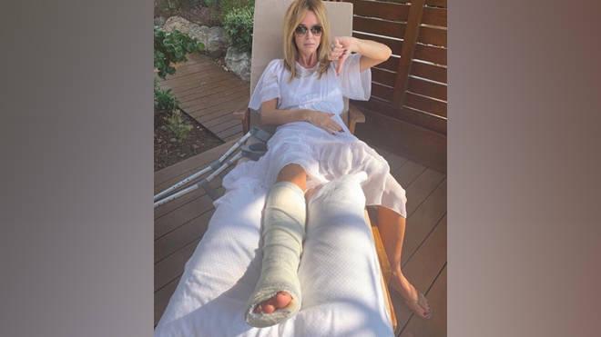 Amanda Holden recovers after suffering a broken leg