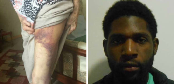 Sanchez Edwards left the 92-year-old woman with horrific injuries following the mugging.
